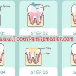 Pain after root canal { Treatment and Relief }